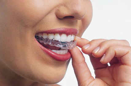 FAQs about Invisalign